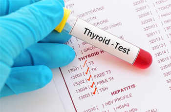 Thyroid Test Packages