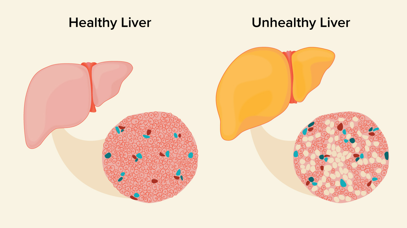 Fatty liver: Signs, Symptoms and Diagnosis