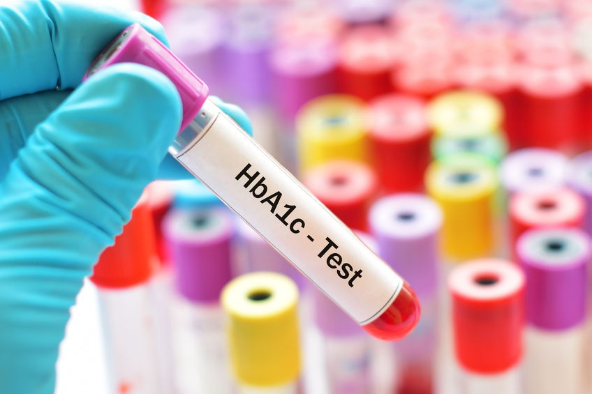 Importance of HbA1c blood test