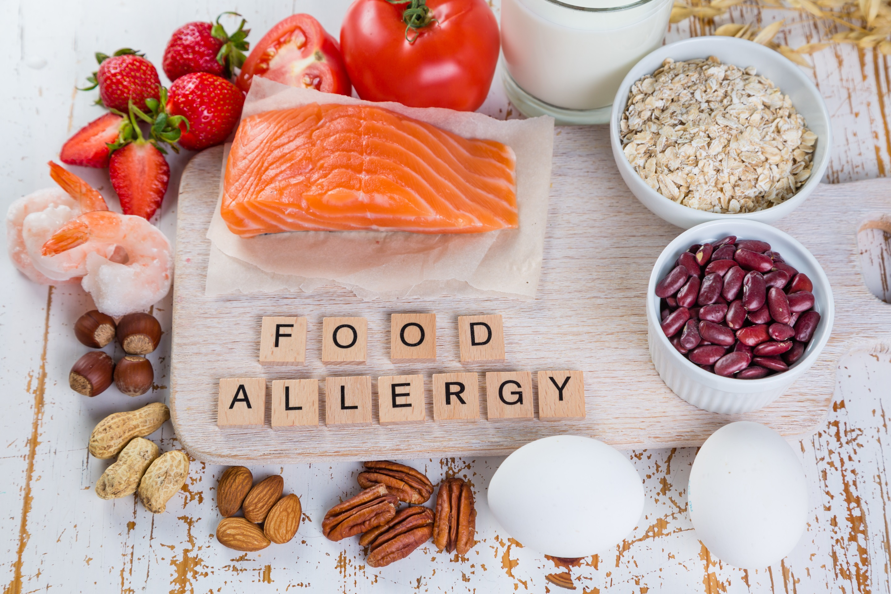 Mentionable symptoms and risk factors of food allergy