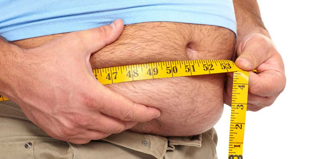 A Brief Overview about Obesity, Its Causes, Symptoms, and Available Treatment