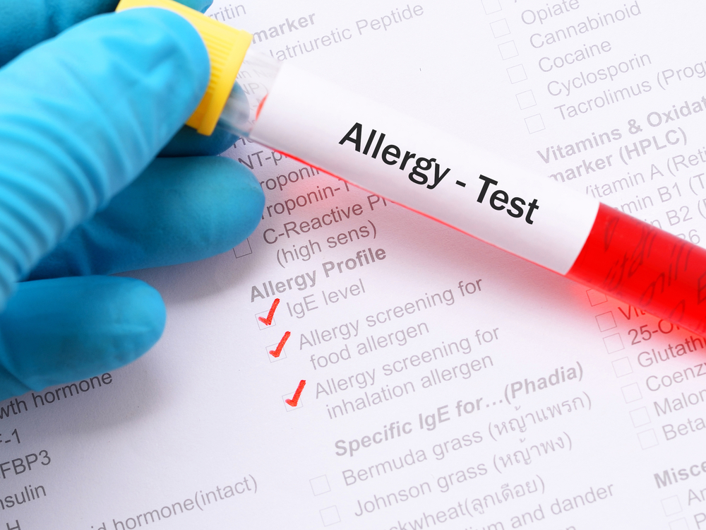 Blood testing for allergies