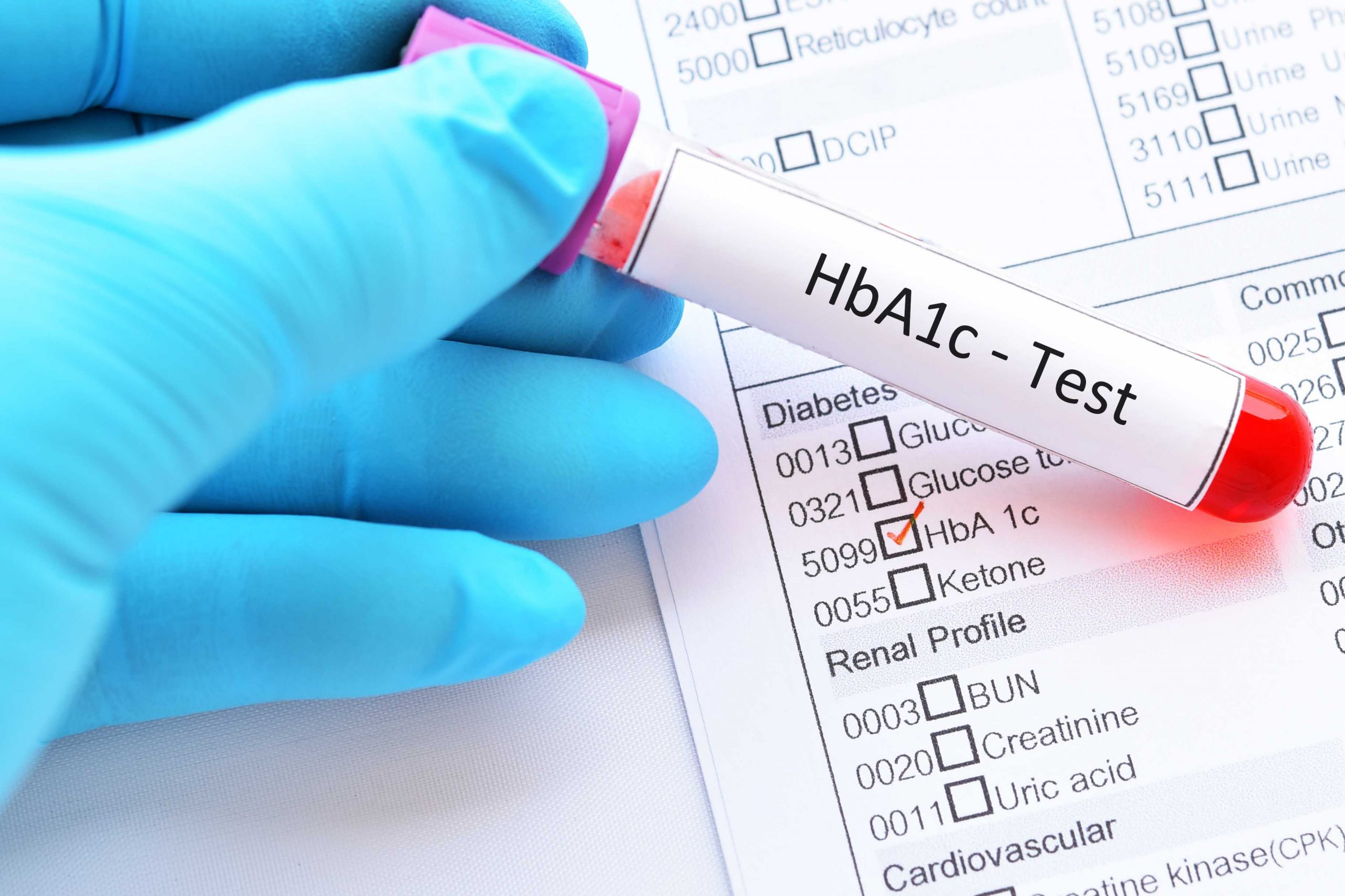 What is HbA1c Test?