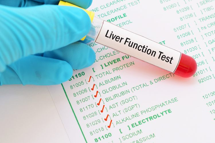 What is the purpose of Liver function tests?