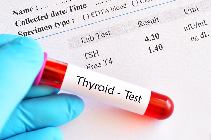 Thyroid Profile test : Preparation and Benefits